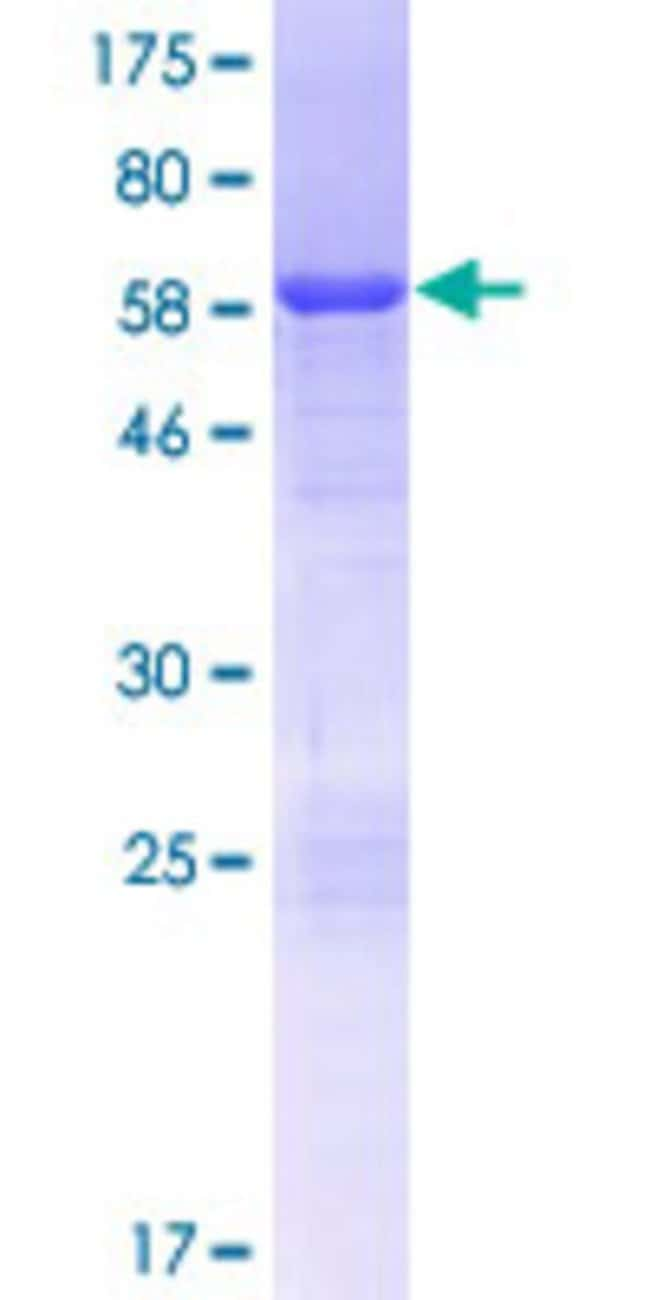 Abnova™Human HDGFL1 Full-length ORF (NP_612641.2, 1 a.a. - 251 a.a.) Recombinant Protein with GST-tag at N-terminal 25μg Abnova™Human HDGFL1 Full-length ORF (NP_612641.2, 1 a.a. - 251 a.a.) Recombinant Protein with GST-tag at N-terminal