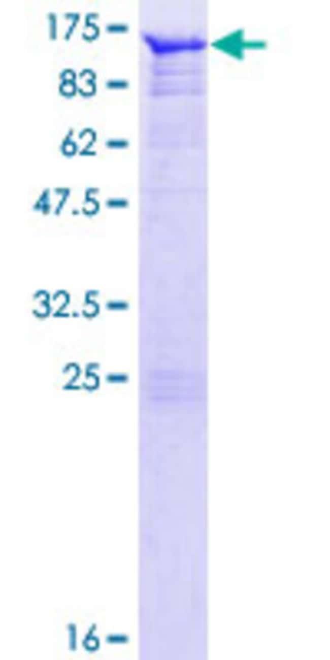 AbnovaHuman AMOT Full-length ORF (NP_573572.1, 1 a.a. - 675 a.a.) Recombinant