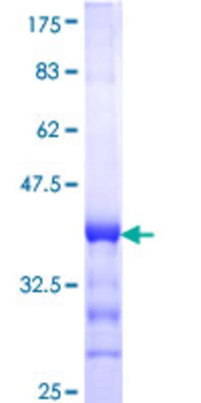 AbnovaHuman AMOT Partial ORF (NP_573572, 361 a.a. - 460 a.a.) Recombinant