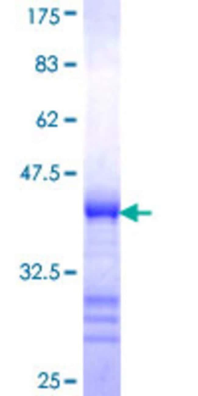 Abnova™Human DKFZp761P0423 Partial ORF (XP_291277, 2 a.a. - 101 a.a.) Recombinant Protein with GST-tag at N-terminal 10μg Abnova™Human DKFZp761P0423 Partial ORF (XP_291277, 2 a.a. - 101 a.a.) Recombinant Protein with GST-tag at N-terminal