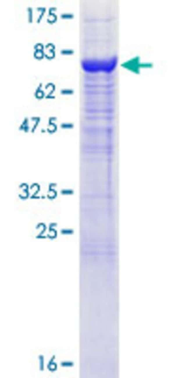 Abnova™Human C9orf98 Full-length ORF (NP_689785.1, 1 a.a. - 479 a.a.) Recombinant Protein with GST-tag at N-terminal 10μg Abnova™Human C9orf98 Full-length ORF (NP_689785.1, 1 a.a. - 479 a.a.) Recombinant Protein with GST-tag at N-terminal