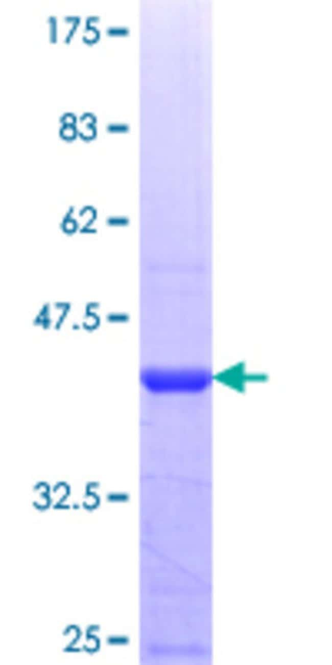 Abnova™ Human ZNF483 Partial ORF (NP_001007170.1, 142 a.a. - 230 a.a.) Recombinant Protein with GST-tag at N-terminal 10μg Abnova™ Human ZNF483 Partial ORF (NP_001007170.1, 142 a.a. - 230 a.a.) Recombinant Protein with GST-tag at N-terminal