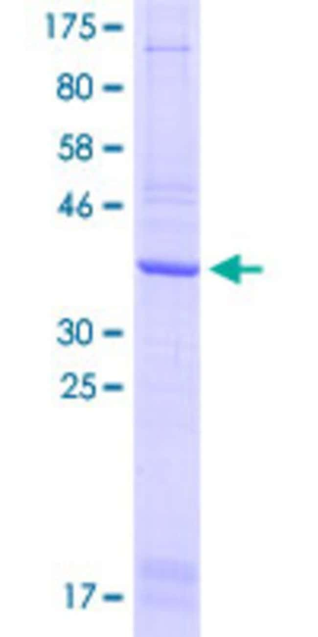 Abnova™Human CLEC12A Partial ORF (ADR82900.1, 108 a.a. - 221 a.a.) Recombinant Protein with GST-tag at N-terminal 25μg Abnova™Human CLEC12A Partial ORF (ADR82900.1, 108 a.a. - 221 a.a.) Recombinant Protein with GST-tag at N-terminal