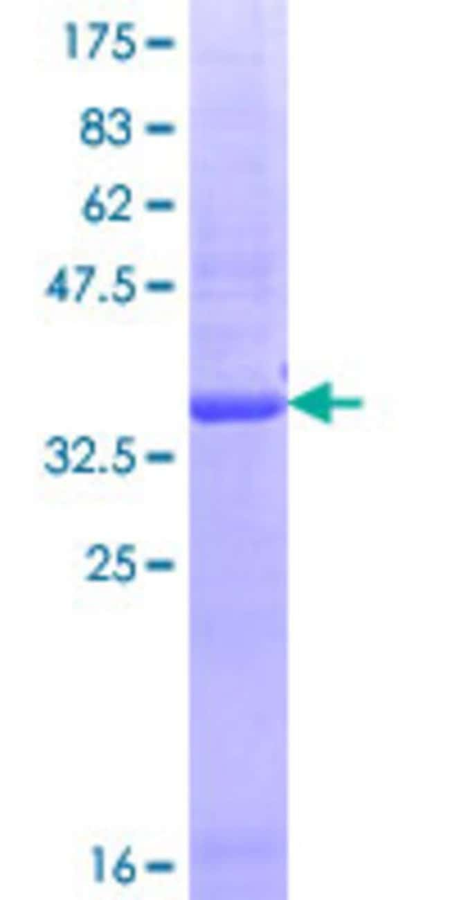 Abnova™Human ITR Partial ORF (NP_851320.1, 21 a.a. - 120 a.a.) Recombinant Protein with GST-tag at N-terminal 10μg Abnova™Human ITR Partial ORF (NP_851320.1, 21 a.a. - 120 a.a.) Recombinant Protein with GST-tag at N-terminal