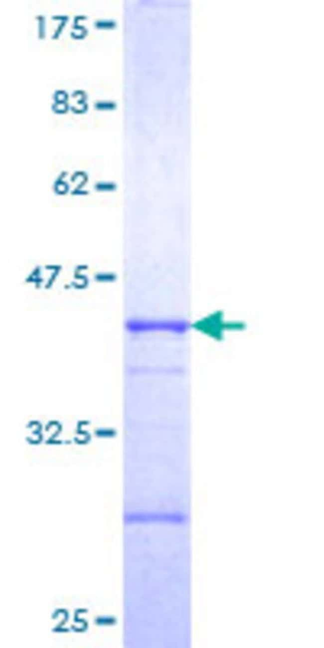 Abnova™ Human C15orf16 Partial ORF (NP_570971, 1 a.a. - 99 a.a.) Recombinant Protein with GST-tag at N-terminal 10μg Abnova™ Human C15orf16 Partial ORF (NP_570971, 1 a.a. - 99 a.a.) Recombinant Protein with GST-tag at N-terminal