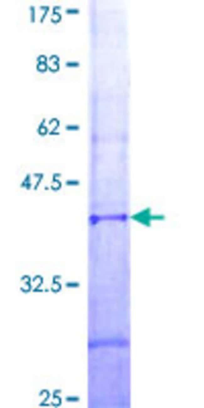 Abnova Human IMP5 Partial ORF (NP_787078, 29 a.a. - 122 a.a.) Recombinant