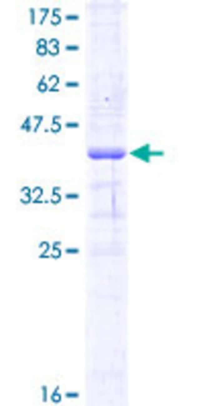 Abnova Human IL28RA Partial ORF (NP_734464, 51 a.a. - 150 a.a.) Recombinant