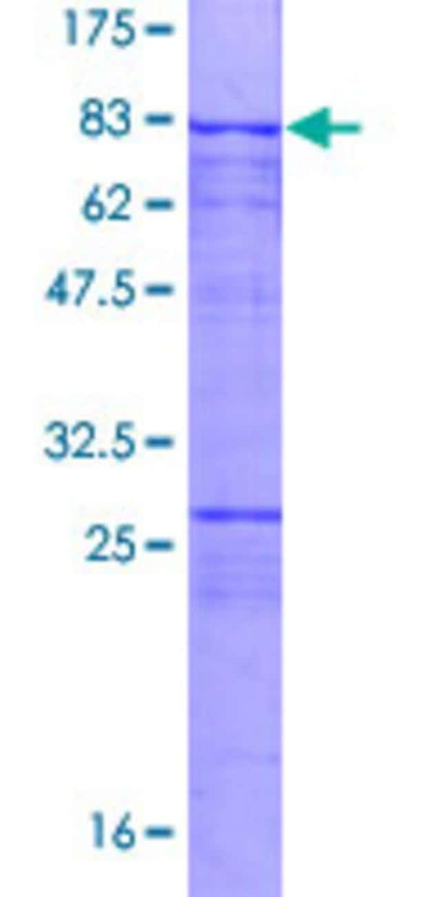 Abnova™ Human SASS6 Full-length ORF (AAI01027.1, 1 a.a. - 490 a.a.) Recombinant Protein with GST-tag at N-terminal 10μg Abnova™ Human SASS6 Full-length ORF (AAI01027.1, 1 a.a. - 490 a.a.) Recombinant Protein with GST-tag at N-terminal