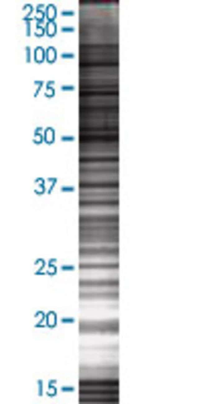 AbnovaAPOBEC3H 293T Cell Transient Overexpression Lysate (Denatured) (T02)