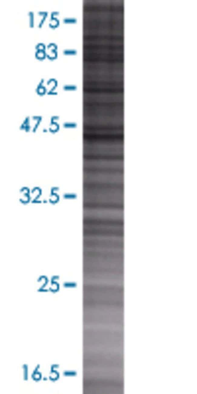 Abnova MGC35154 293T Cell Transient Overexpression Lysate (Denatured) 100µL:Life