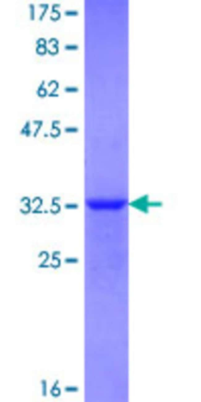 Abnova™Human BHLHB8 Partial ORF (NP_803238.1, 75 a.a. - 140 a.a.) Recombinant Protein with GST-tag at N-terminal 25μg Abnova™Human BHLHB8 Partial ORF (NP_803238.1, 75 a.a. - 140 a.a.) Recombinant Protein with GST-tag at N-terminal