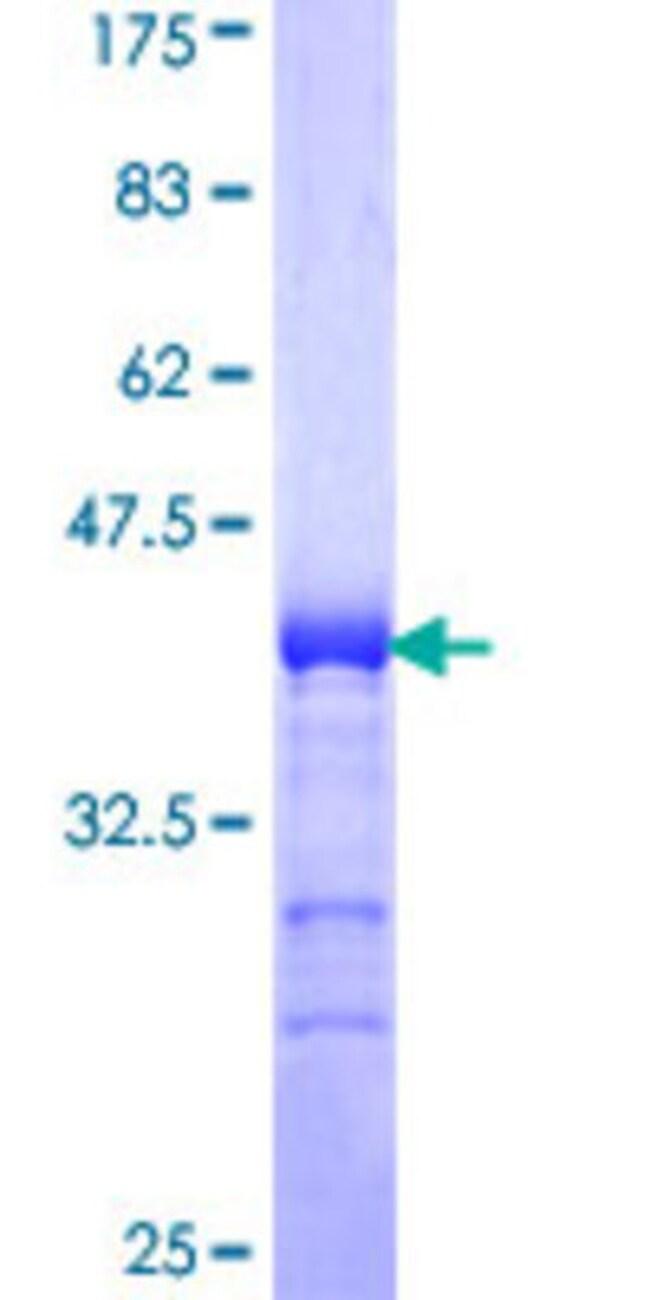 AbnovaHuman ADAMTS17 Partial ORF (NP_620688, 543 a.a. - 650 a.a.) Recombinant