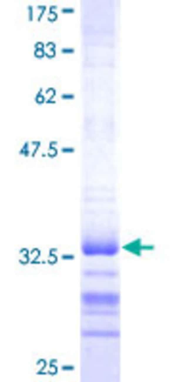Abnova Human GSH2 Partial ORF (NP_573574, 1 a.a. - 70 a.a.) Recombinant