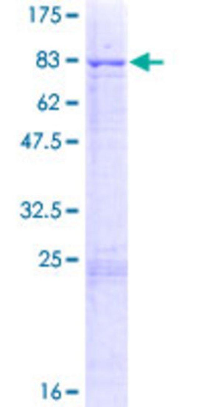 Abnova Human MLKL Full-length ORF (NP_689862.1, 1 a.a. - 471 a.a.) Recombinant