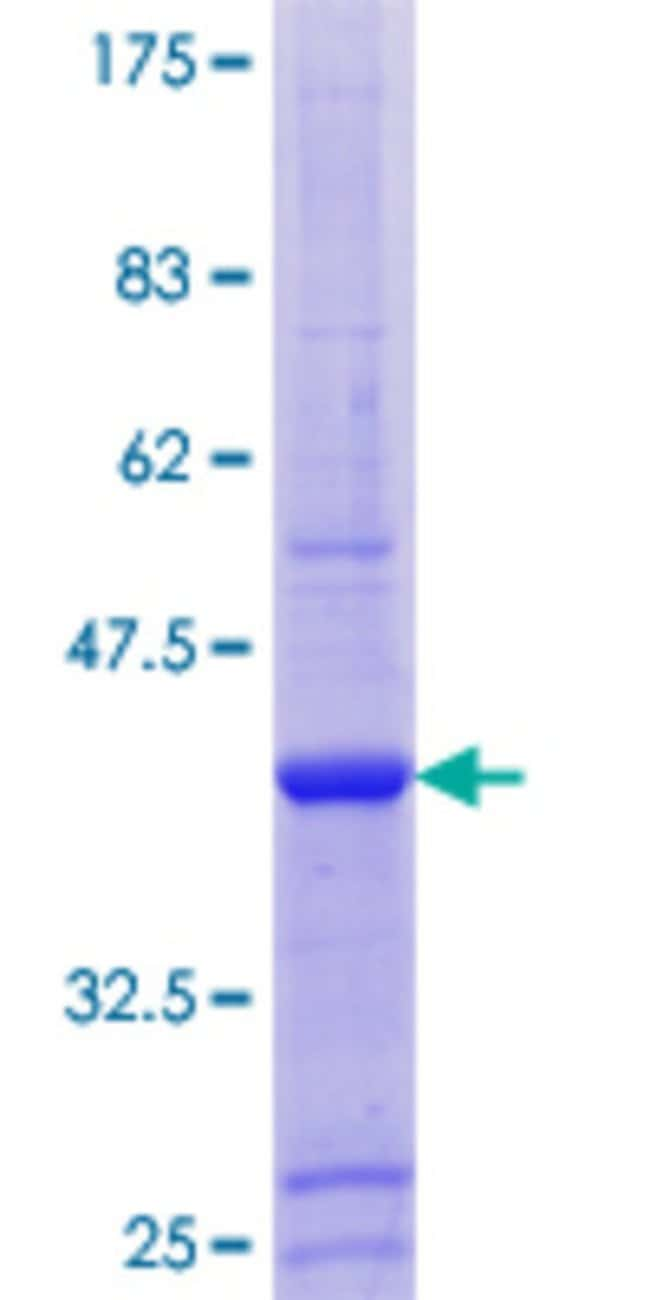 Abnova™Human ZNF585A Full-length ORF (AAH26081.1, 1 a.a. - 113 a.a.) Recombinant Protein with GST-tag at N-terminal 10μg Abnova™Human ZNF585A Full-length ORF (AAH26081.1, 1 a.a. - 113 a.a.) Recombinant Protein with GST-tag at N-terminal