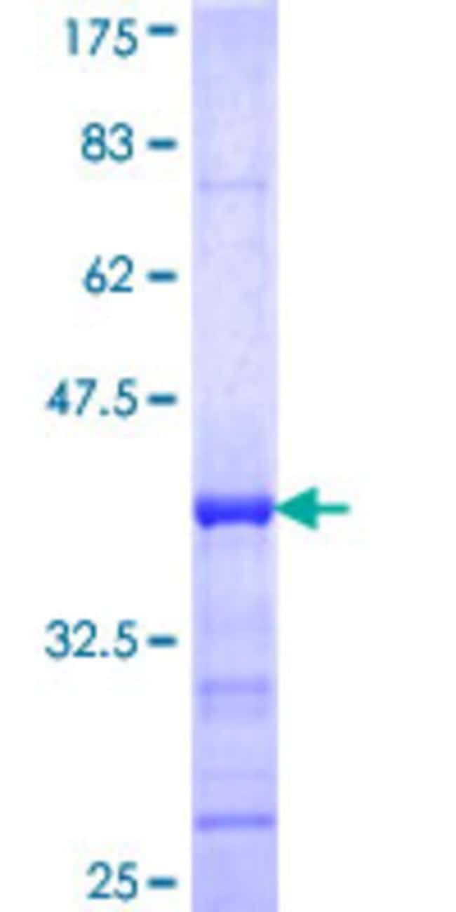 Abnova™Human U2AF1L3 Partial ORF (NP_659424, 103 a.a. - 201 a.a.) Recombinant Protein with GST-tag at N-terminal 25μg Abnova™Human U2AF1L3 Partial ORF (NP_659424, 103 a.a. - 201 a.a.) Recombinant Protein with GST-tag at N-terminal