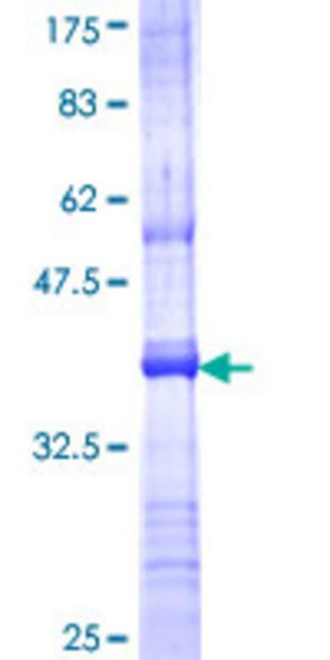 AbnovaHuman APOBEC3F Partial ORF (NP_660341, 274 a.a. - 372 a.a.) Recombinant