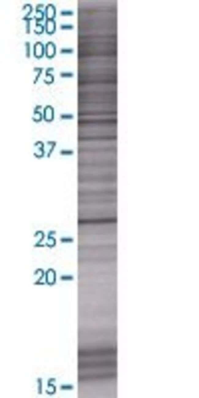 Abnova KCTD6 293T Cell Transient Overexpression Lysate (Denatured) (T01)