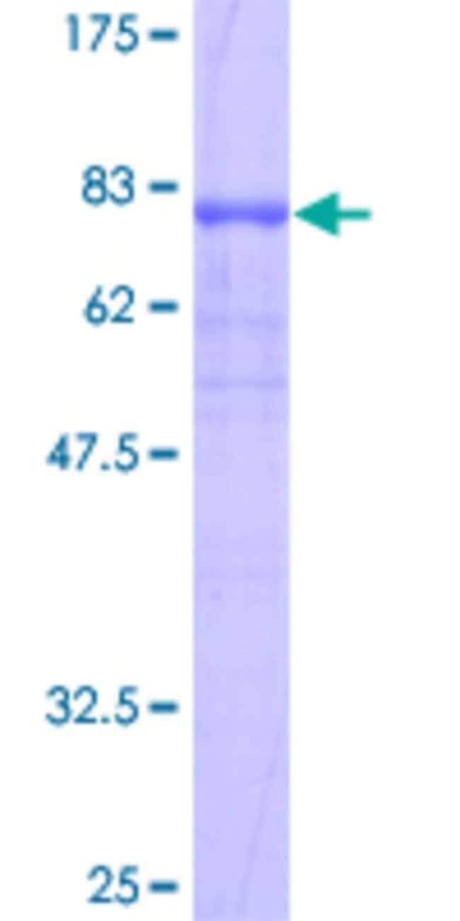 Abnova Human LIPH Full-length ORF (AAH64941, 1 a.a. - 451 a.a.) Recombinant