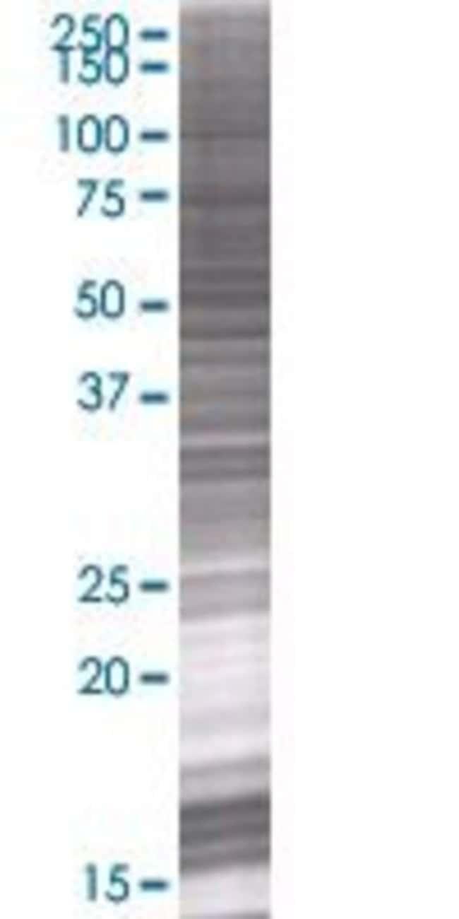 Abnova LIPH 293T Cell Transient Overexpression Lysate (Denatured) 100µL:Life