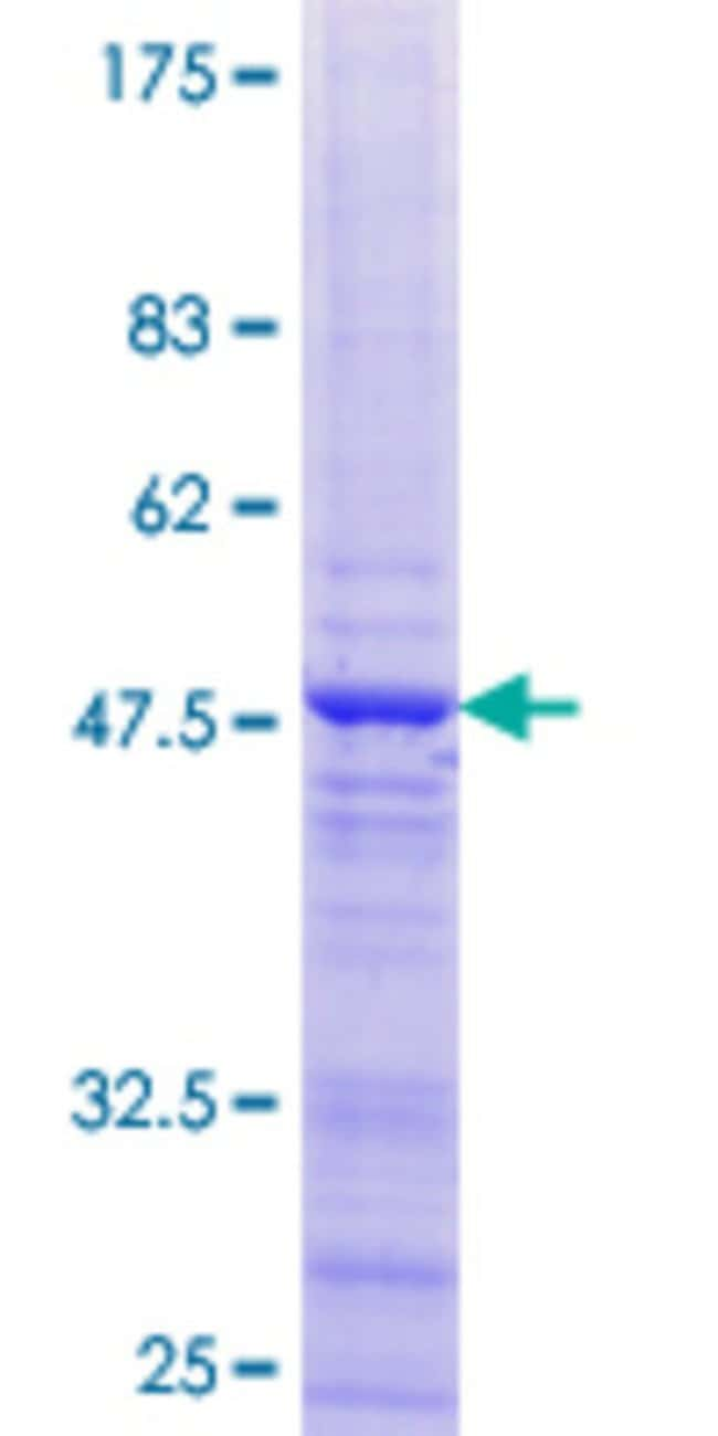 Abnova™Human LOC201181 Full-length ORF (NP_001013646.1, 1 a.a. - 174 a.a.) Recombinant Protein with GST-tag at N-terminal 25μg Abnova™Human LOC201181 Full-length ORF (NP_001013646.1, 1 a.a. - 174 a.a.) Recombinant Protein with GST-tag at N-terminal