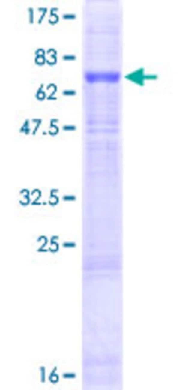 Abnova™ Human FBXO15 Full-length ORF (NP_689889.1, 1 a.a. - 434 a.a.) Recombinant Protein with GST-tag at N-terminal 25μg Abnova™ Human FBXO15 Full-length ORF (NP_689889.1, 1 a.a. - 434 a.a.) Recombinant Protein with GST-tag at N-terminal