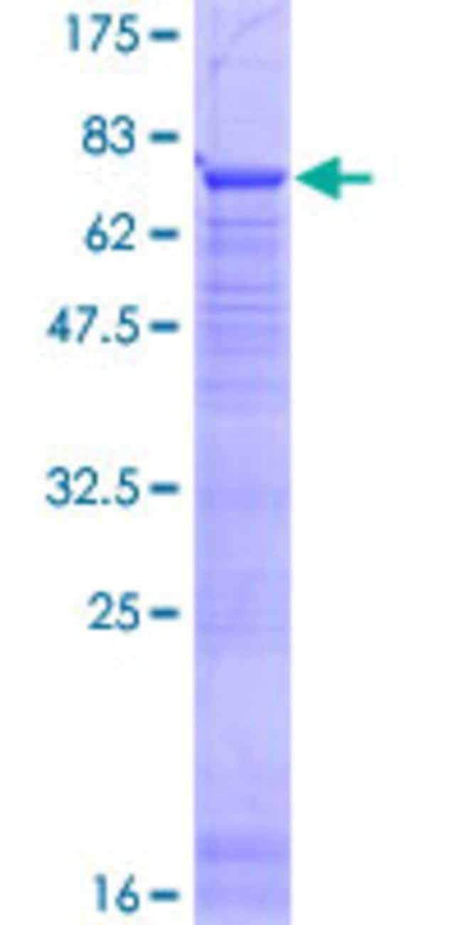 Abnova™ Human PTPLB Full-length ORF (NP_940684.1, 1 a.a. - 254 a.a.) Recombinant Protein with GST-tag at N-terminal 25μg Abnova™ Human PTPLB Full-length ORF (NP_940684.1, 1 a.a. - 254 a.a.) Recombinant Protein with GST-tag at N-terminal