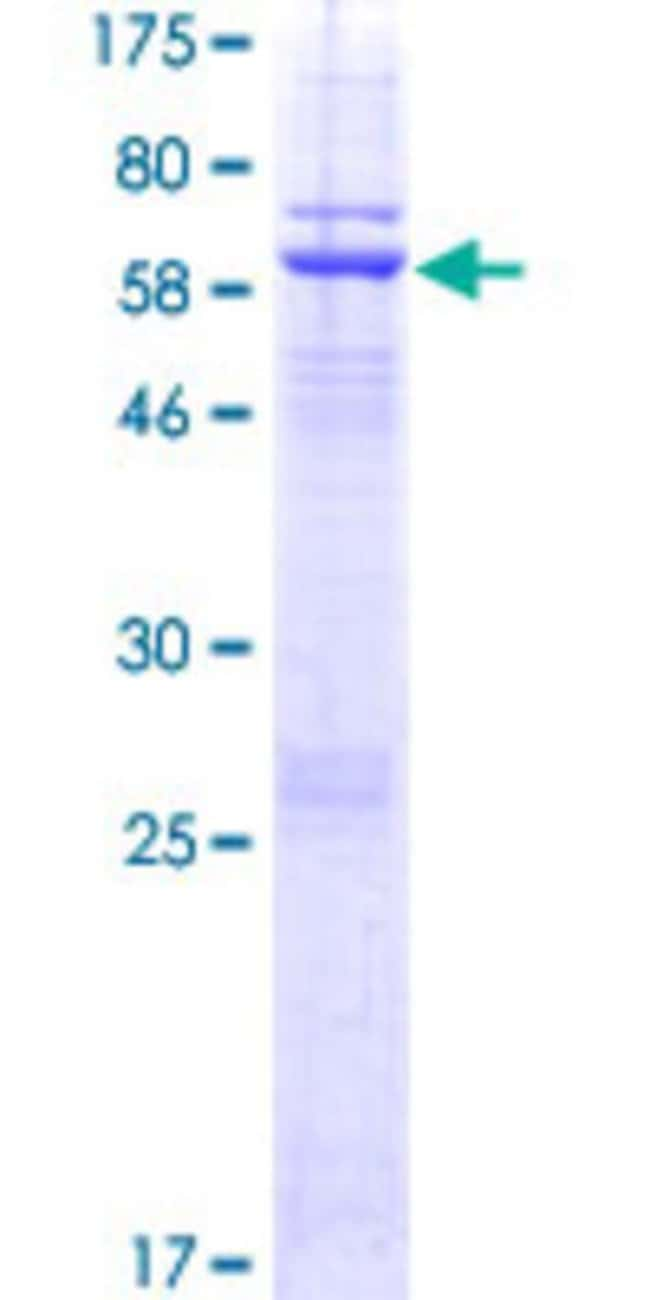 Abnova™Human DNAJC18 Full-length ORF (NP_689899.1, 1 a.a. - 358 a.a.) Recombinant Protein with GST-tag at N-terminal 10μg Abnova™Human DNAJC18 Full-length ORF (NP_689899.1, 1 a.a. - 358 a.a.) Recombinant Protein with GST-tag at N-terminal