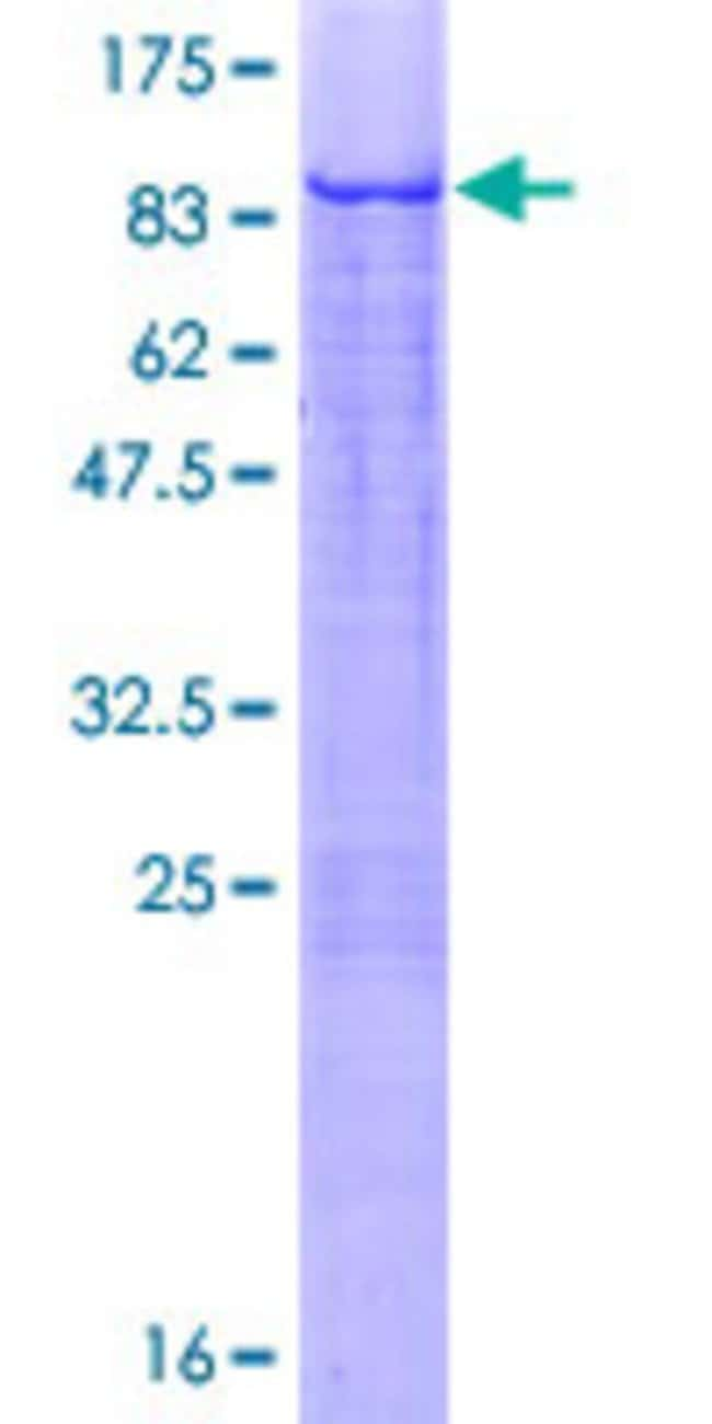 Abnova™Human ZNF449 Full-length ORF (AAH60768.1, 1 a.a. - 518 a.a.) Recombinant Protein MW: 86.3kDa with GST-tag at N-terminal 10μg Abnova™Human ZNF449 Full-length ORF (AAH60768.1, 1 a.a. - 518 a.a.) Recombinant Protein MW: 86.3kDa with GST-tag at N-terminal