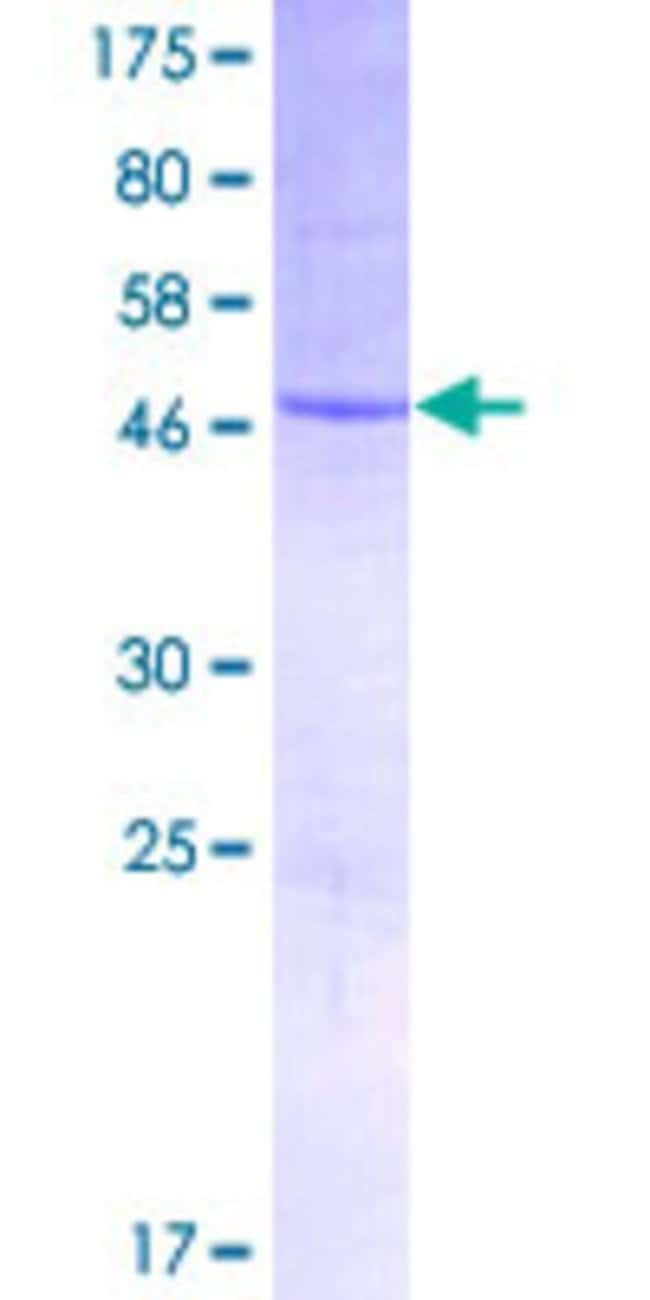 Abnova™Human RPSAP52 Full-length ORF (AAH58822.1, 1 a.a. - 197 a.a.) Recombinant Protein with GST-tag at N-terminal 25μg Abnova™Human RPSAP52 Full-length ORF (AAH58822.1, 1 a.a. - 197 a.a.) Recombinant Protein with GST-tag at N-terminal
