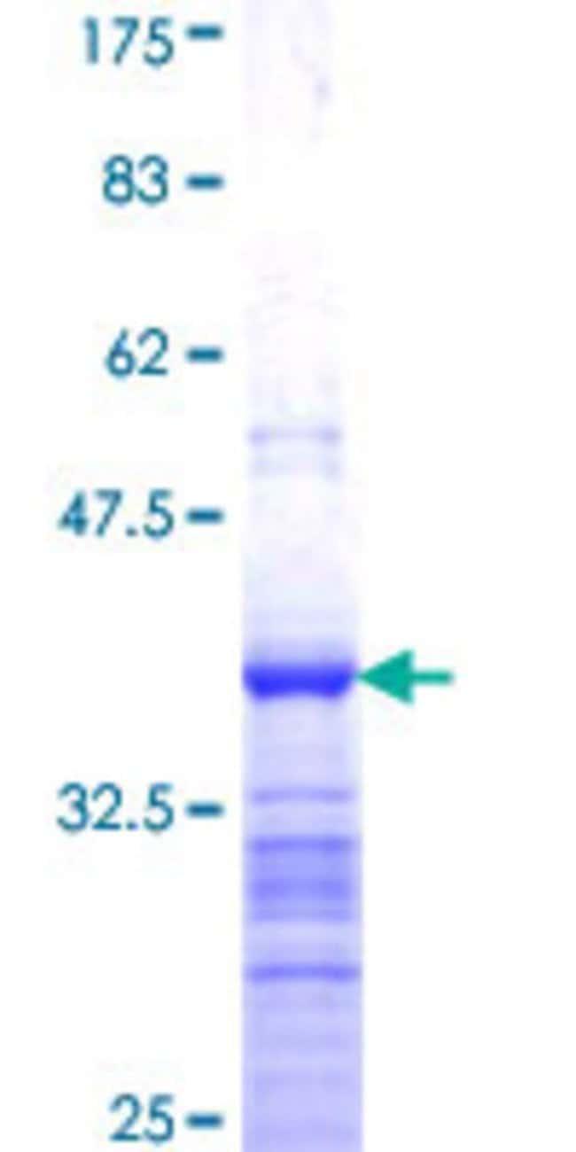 Abnova Human LASS3 Partial ORF (NP_849164, 57 a.a. - 134 a.a.) Recombinant