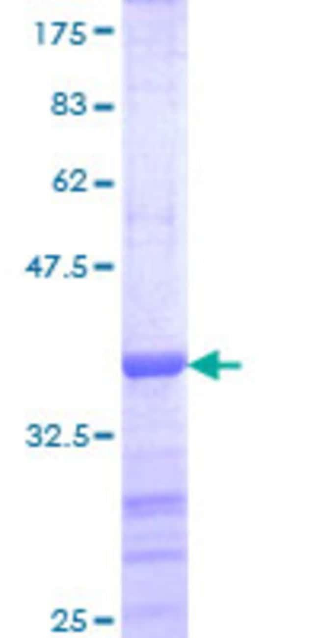 Abnova Human HIPK1 Partial ORF (AAH28408, 330 a.a. - 430 a.a.) Recombinant