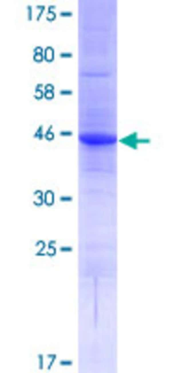 Abnova™Human FLJ90650 Full-length ORF (AAH45809.1, 1 a.a. - 198 a.a.) Recombinant Protein with GST-tag at N-terminal 25μg Abnova™Human FLJ90650 Full-length ORF (AAH45809.1, 1 a.a. - 198 a.a.) Recombinant Protein with GST-tag at N-terminal