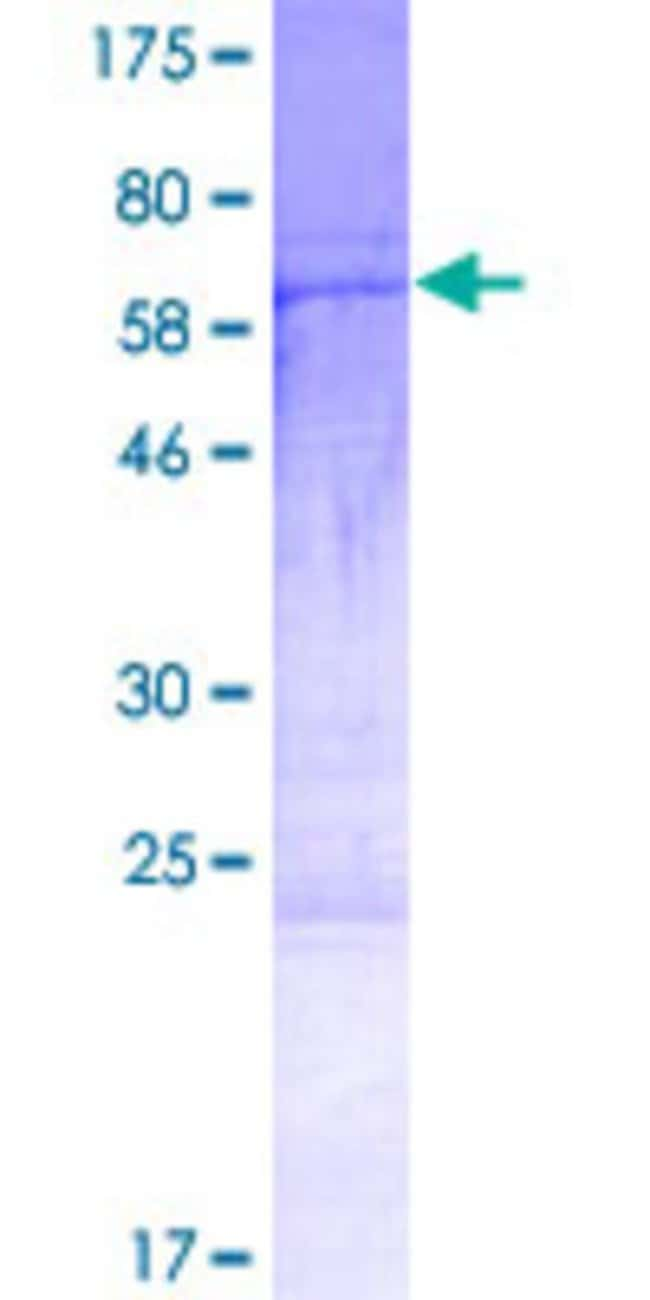 Abnova Human HYLS1 Full-length ORF (NP_659451.1, 1 a.a. - 299 a.a.) Recombinant