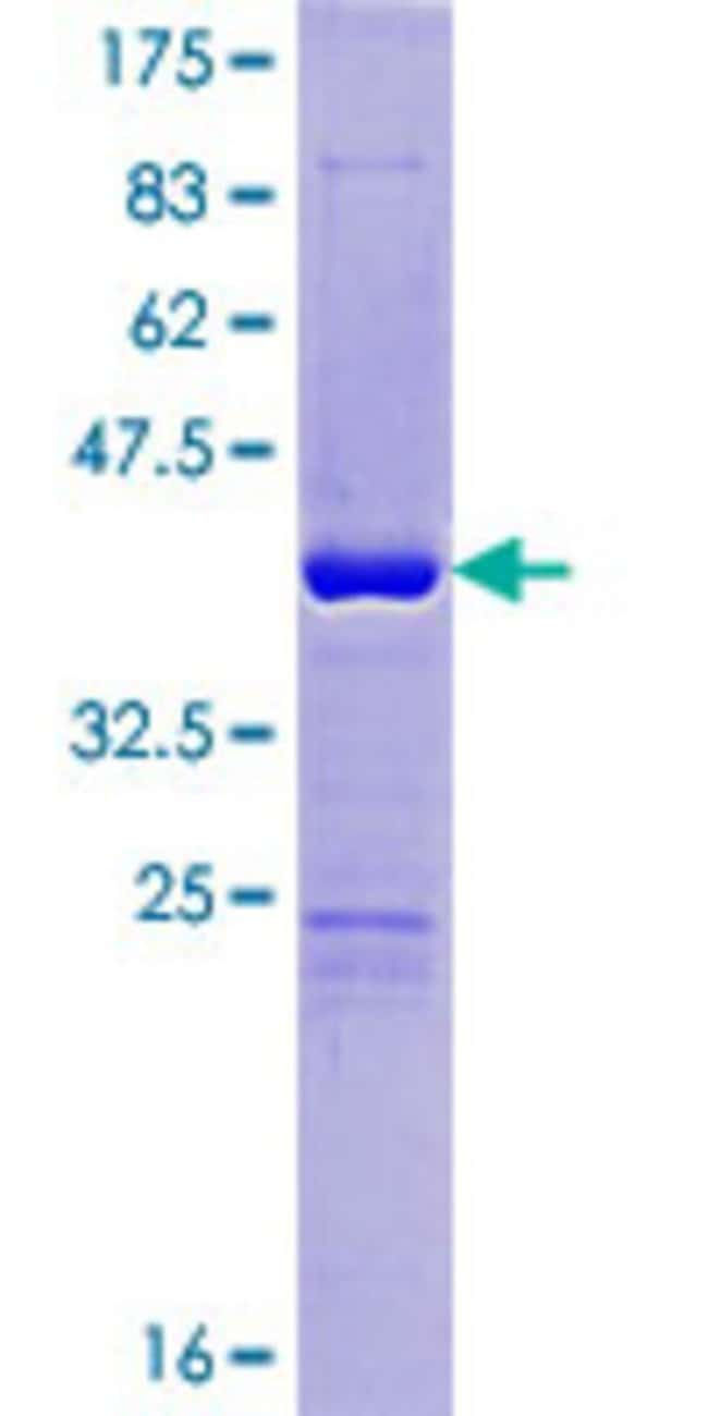 Abnova™Human ORAOV1 Full-length ORF (NP_703152.1, 1 a.a. - 137 a.a.) Recombinant Protein with GST-tag at N-terminal 25μg Abnova™Human ORAOV1 Full-length ORF (NP_703152.1, 1 a.a. - 137 a.a.) Recombinant Protein with GST-tag at N-terminal