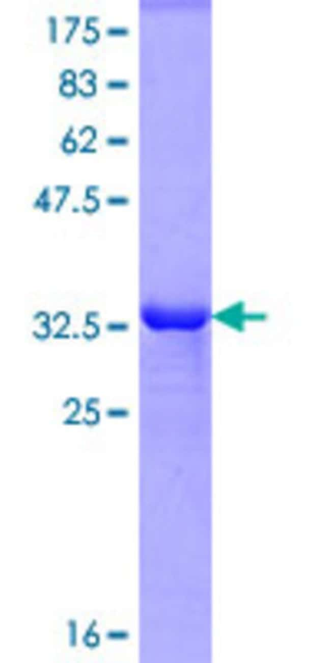 Abnova Human MARCH8 Partial ORF (NP_659458, 77 a.a. - 153 a.a.) Recombinant