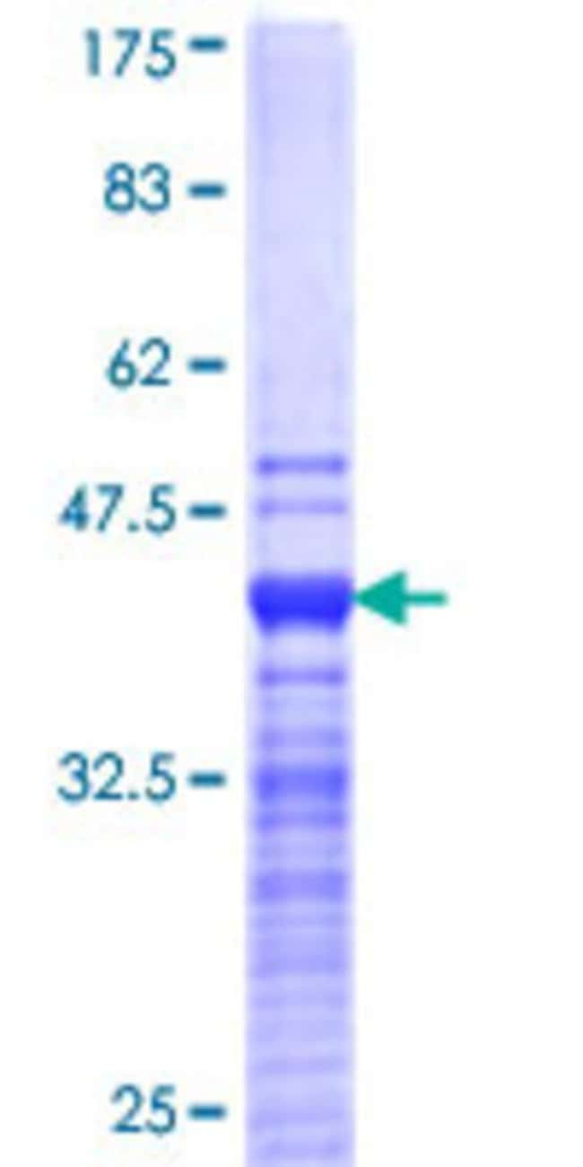 Abnova Human JMJD1C Partial ORF (NP_004232, 2 a.a. - 99 a.a.) Recombinant