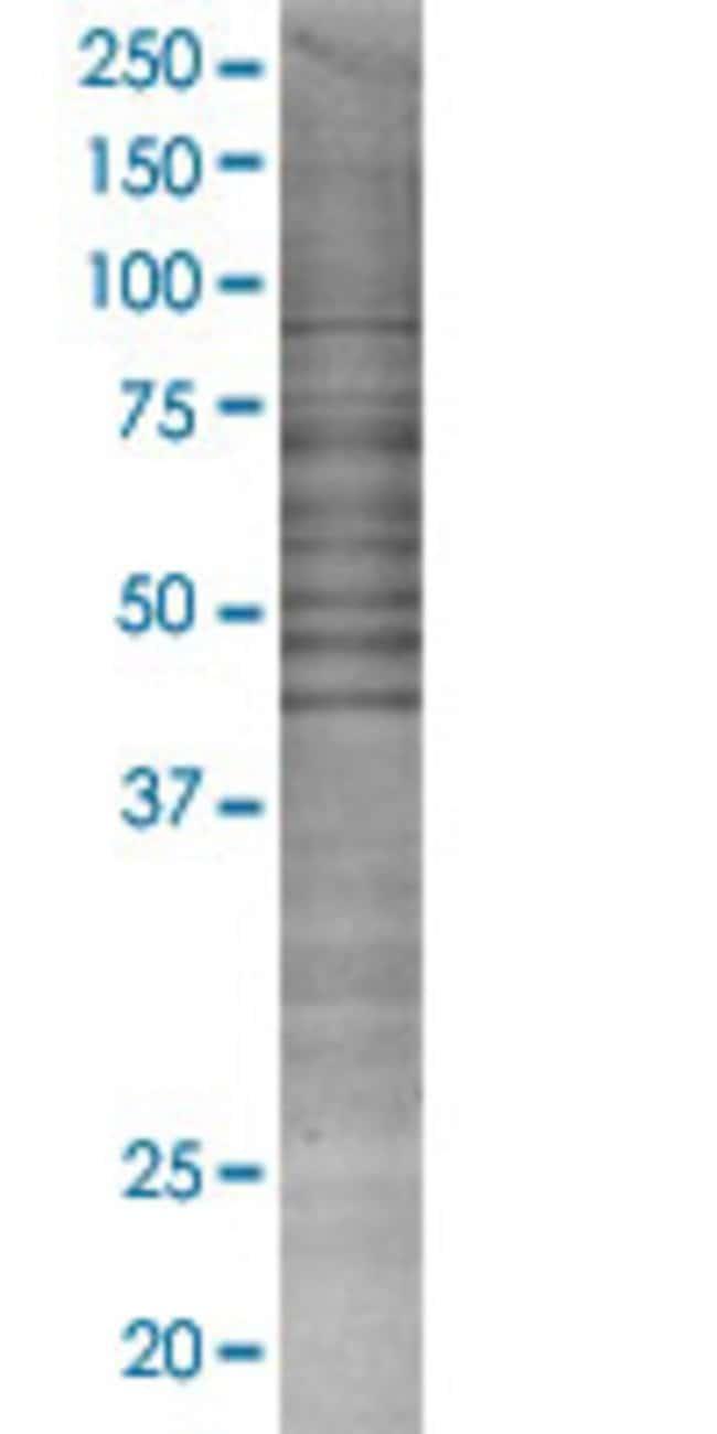 Abnova LOC221091 293T Cell Transient Overexpression Lysate (Denatured)