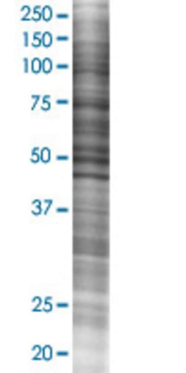Abnova GSTA5 293T Cell Transient Overexpression Lysate (Denatured) (T02)