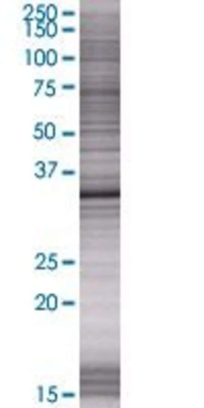 Abnova KIF6 293T Cell Transient Overexpression Lysate (Denatured) (T01)