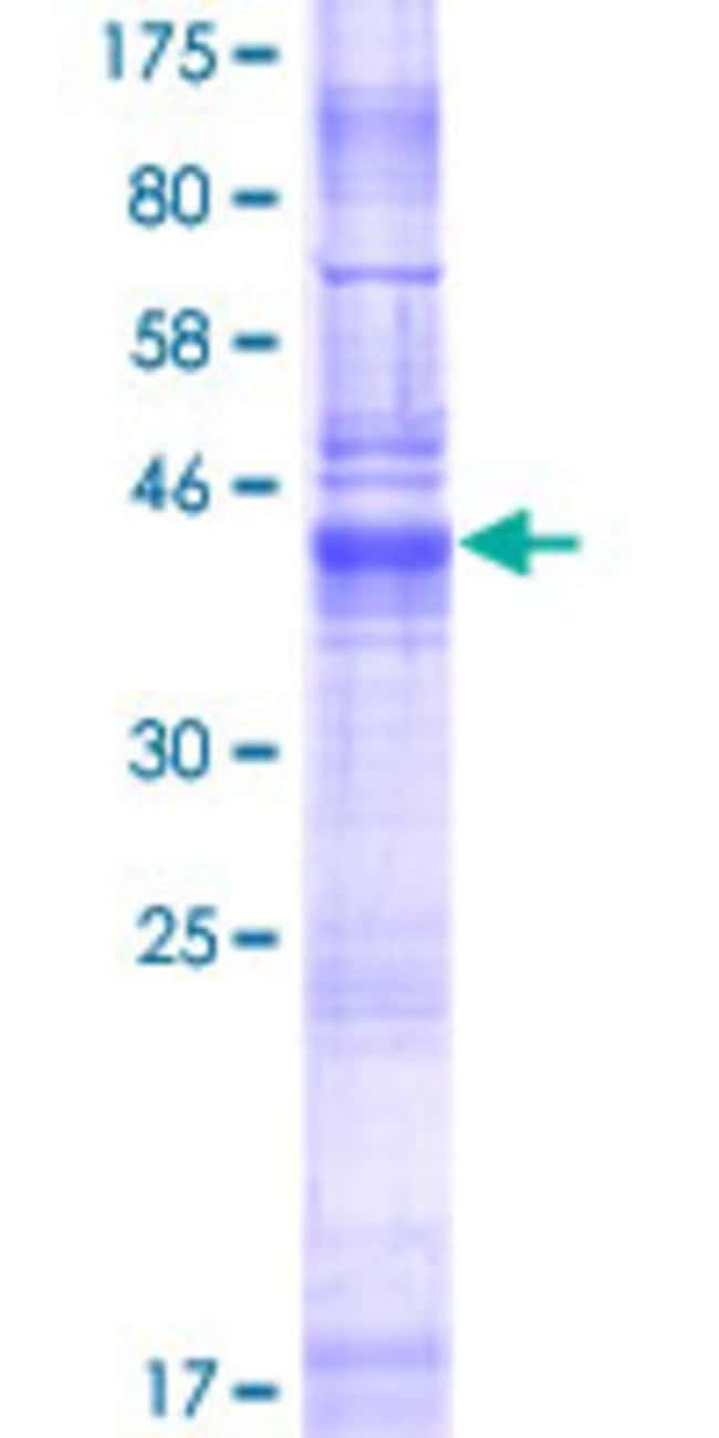 Abnova Human LHFPL5 Full-length ORF (NP_872354.1, 1 a.a. - 219 a.a.) Recombinant