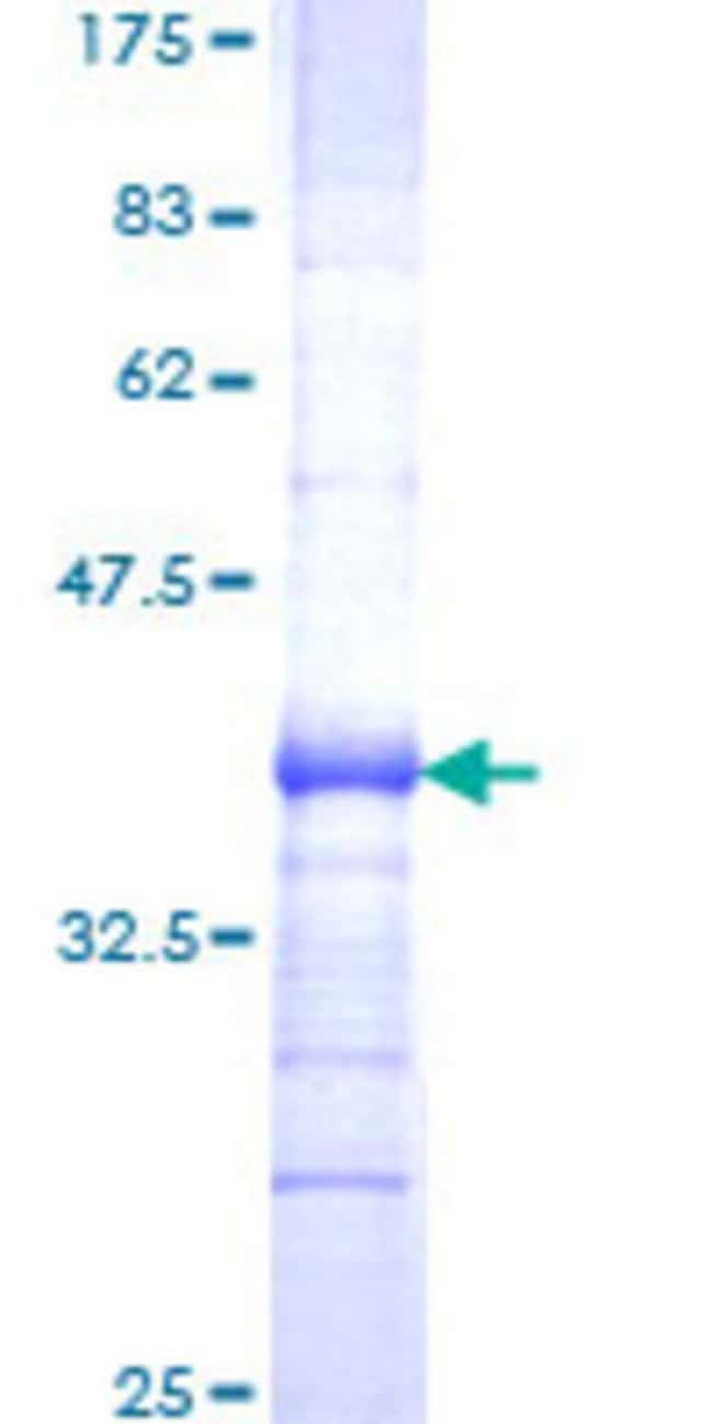 Abnova™ Human SCUBE3 Partial ORF (NP_689966, 401 a.a. - 499 a.a.) Recombinant Protein with GST-tag at N-terminal 25μg Abnova™ Human SCUBE3 Partial ORF (NP_689966, 401 a.a. - 499 a.a.) Recombinant Protein with GST-tag at N-terminal