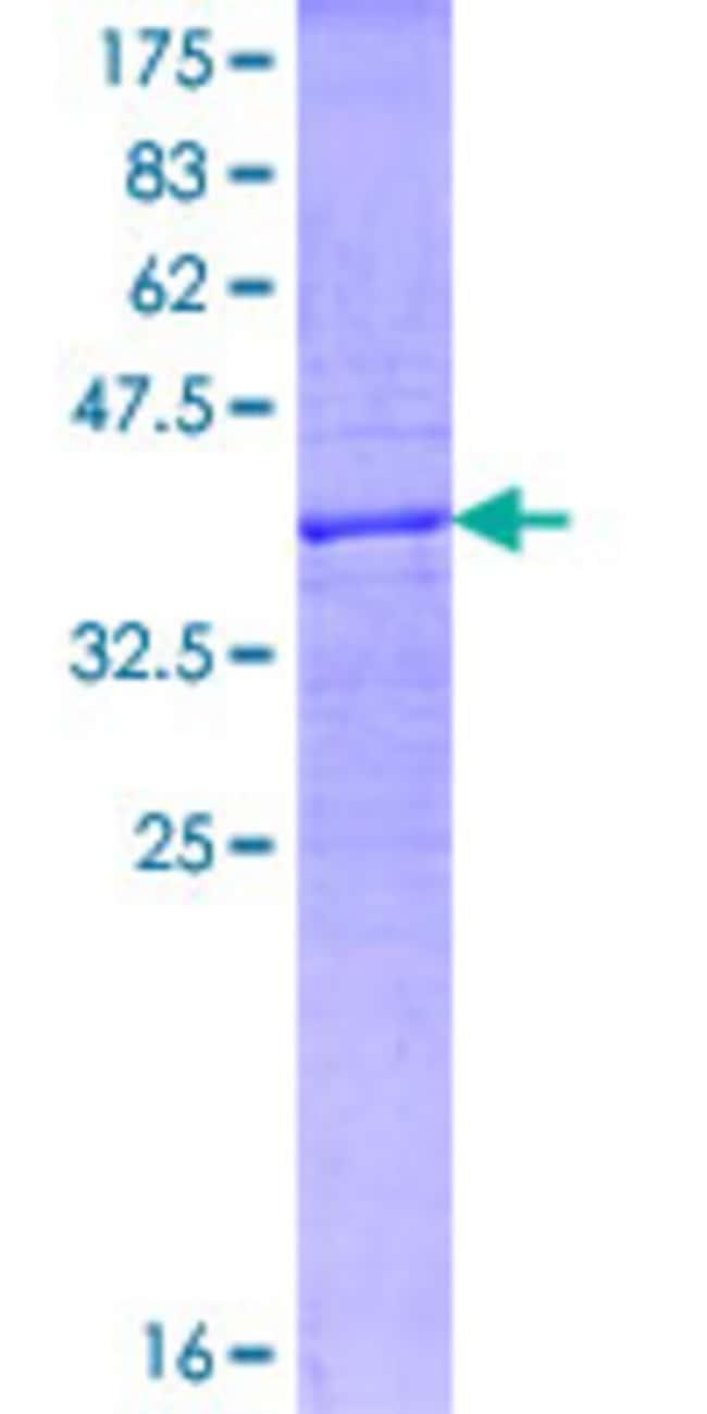Abnova™Human SEMA3D Partial ORF (NP_689967, 674 a.a. - 777 a.a.) Recombinant Protein with GST-tag at N-terminal 10μg Abnova™Human SEMA3D Partial ORF (NP_689967, 674 a.a. - 777 a.a.) Recombinant Protein with GST-tag at N-terminal