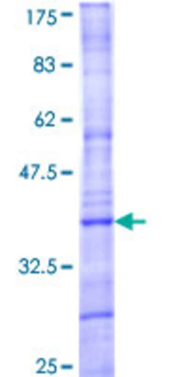 Abnova™Human MAPK15 Partial ORF (NP_620590, 3 a.a. - 83 a.a.) Recombinant Protein with GST-tag at N-terminal 25μg Abnova™Human MAPK15 Partial ORF (NP_620590, 3 a.a. - 83 a.a.) Recombinant Protein with GST-tag at N-terminal
