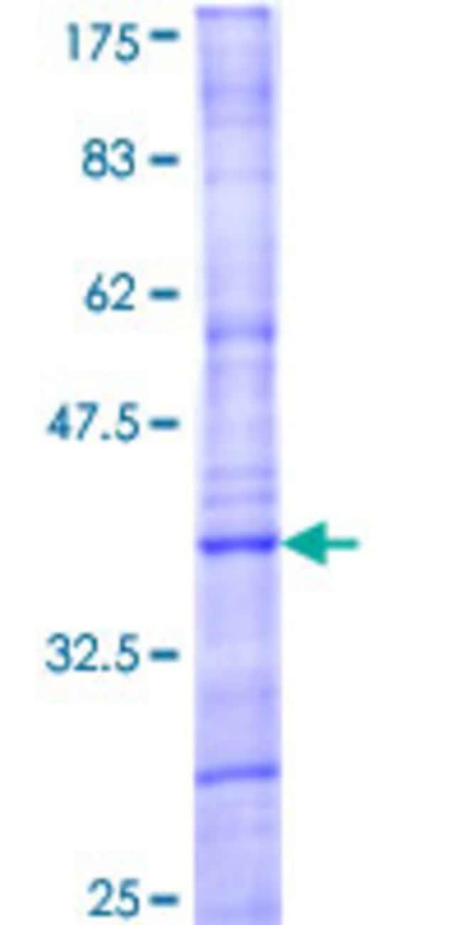 Abnova Human MAPK15 Partial ORF (NP_620590, 3 a.a. - 83 a.a.) Recombinant