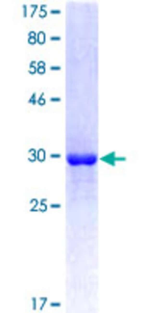 AbnovaHuman ATP6V0D2 Partial ORF (NP_689778, 238 a.a. - 306 a.a.) Recombinant