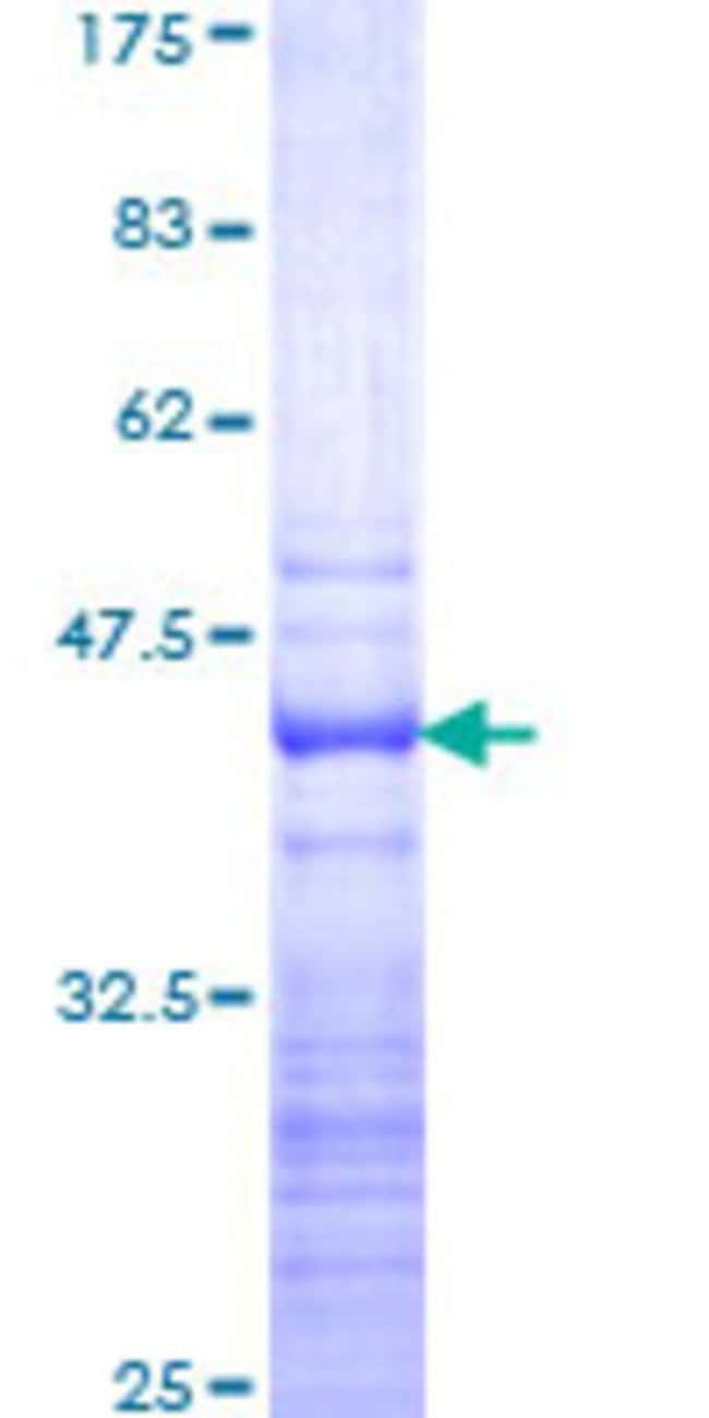 Abnova™ Human GAS2L2 Partial ORF (NP_644814, 665 a.a. - 776 a.a.) Recombinant Protein with GST-tag at N-terminal 25μg Abnova™ Human GAS2L2 Partial ORF (NP_644814, 665 a.a. - 776 a.a.) Recombinant Protein with GST-tag at N-terminal