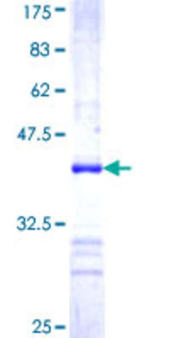 Abnova™Human RICTOR Partial ORF (NP_689969, 1 a.a. - 98 a.a.) Recombinant Protein with GST-tag at N-terminal 25μg Abnova™Human RICTOR Partial ORF (NP_689969, 1 a.a. - 98 a.a.) Recombinant Protein with GST-tag at N-terminal