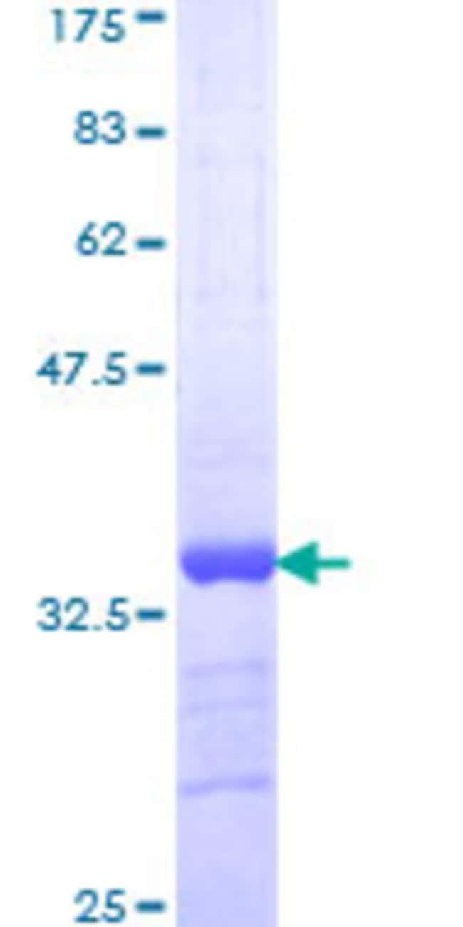 Abnova Human LASS6 Partial ORF (NP_982288, 62 a.a. - 131 a.a.) Recombinant