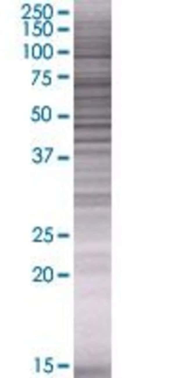 AbnovaASPHD1 293T Cell Transient Overexpression Lysate (Denatured) 100μL:Protein
